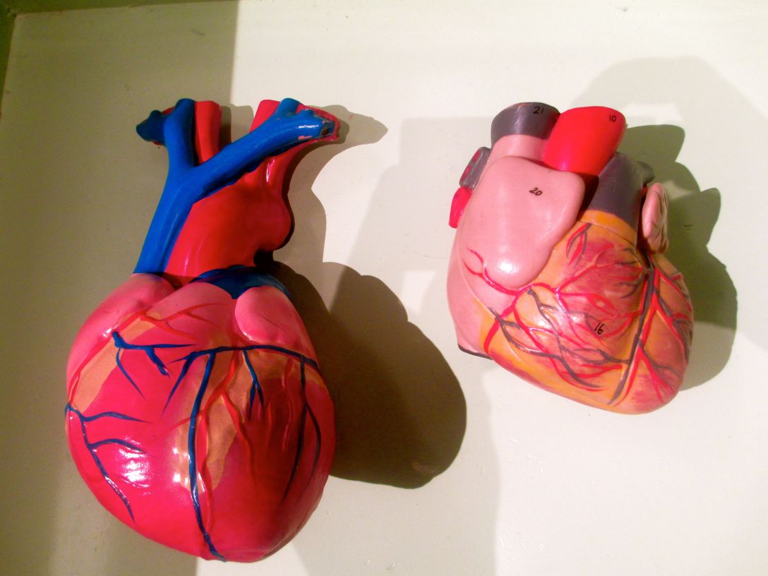 plasticheart